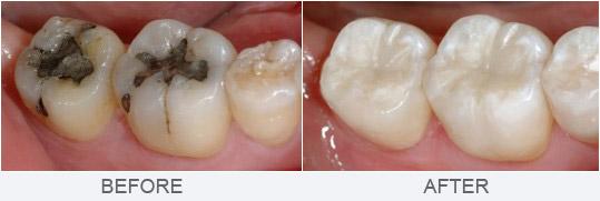 hàn sâu răng tốt nhất