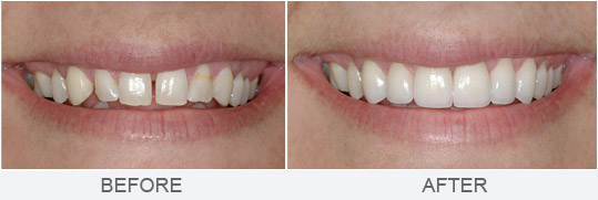 Patients Who Are Concerned With Staining Prefer Them Over Bonding Because Porcelain Is Resistant To Color Change Time Veneers Bonded Directly